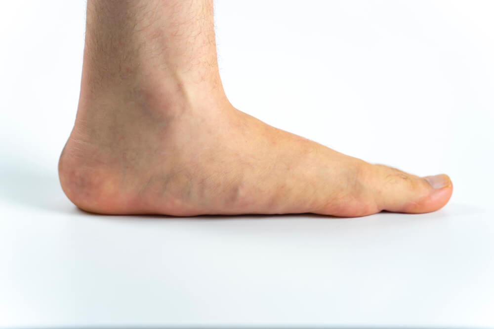 An advanced flat feet (pes planus or fallen arches) medical condition