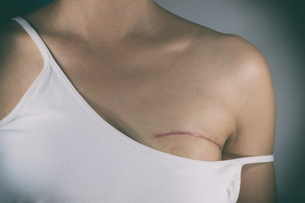 Breast cancer surgery scars by partial mastectomy. She can wear a tube top or tube dress and strapless with confident. With effect filter.