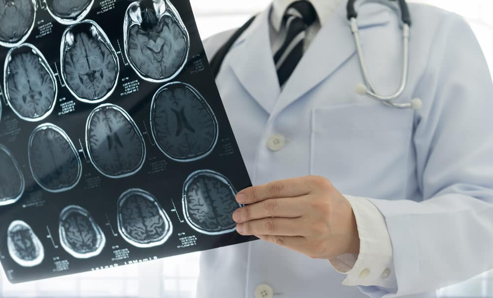 Doctor check up x-ray film of the brain by ct scan brain at patient room hospital.