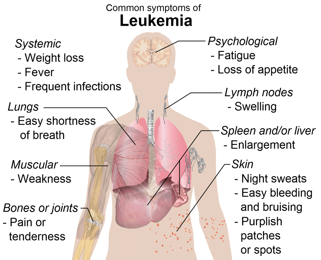 Anatomical chart listing common symptoms of leukemia