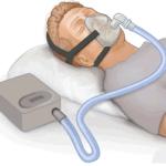 Person sleeping iwth CPAP machine.