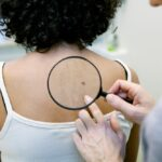 A doctor inspects a suspicious mole on the back of a woman; how to identify skin cancer concept