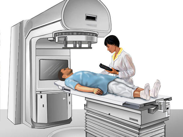 External beam radiation therapy comes from a machine that aims radiation at your cancer.