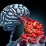 Blood clot brain medical concept as 3D illustration blood cells blocked by an artery blockage thrombus causing a blockage of blood flow to the neurology anatomy in a black background.